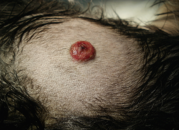 Fatty tumors on dogs stomach